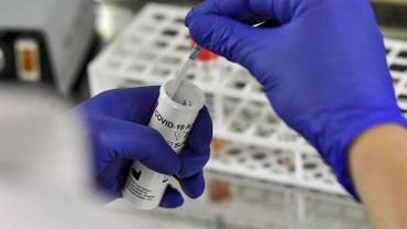 Photo of الجزائر تشرع في إنتاج كاشف سريع لفيروس كورونا في 15 دقيقة