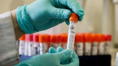 Photo of حصيلة: 343 إصابة جديدة بفيروس كورونا و 10 وفيات خلال الـ24 ساعة الأخيرة