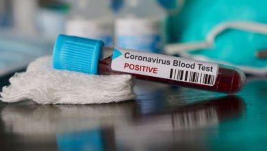 Photo of Coronavirus : 441 nouveaux cas,311 guérisons et 6 décès en Algérie durant les dernières 24h