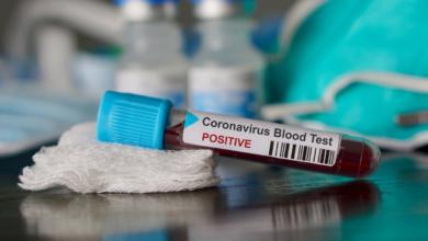 Photo of حصيلة: 477 إصابة جديدة بفيروس كورونا، 304 حالة شفاء و 10 وفيات خلال الـ 24 ساعة الأخيرة في الجزائر