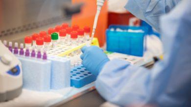 Photo of حصيلة: 162 إصابة جديدة بفيروس كورونا، 111 حالة شفاء و 8 وفيات خلال الـ 24 ساعة الأخيرة