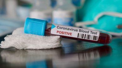 Photo of حصيلة: تسجيل 803 إصابة جديدة بفيروس كورونا، 541 حالة شفاء و12 حالة وفاة خلال الـ 24 ساعة الأخيرة في الجزائر