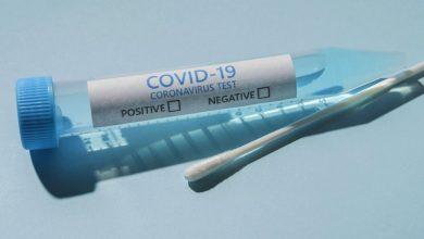 Photo of Coronavirus: 177 nouveaux cas, 149 guérisons et 3 décès