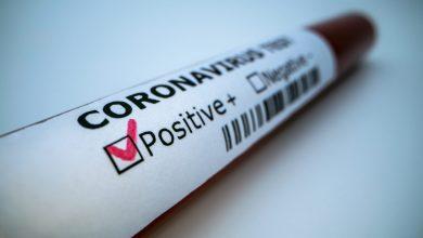 Photo of حصيلة: 163 إصابة جديدة بفيروس كورونا، 147 حالة شفاء و 5 وفيات خلال الـ24 ساعة الأخيرة