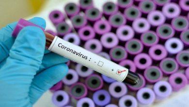 Photo of حصيلة: 127 إصابة جديدة بفيروس كورونا 101حالة شفاء و3 وفيات خلال الـ 24 ساعة الأخيرة في الجزائر