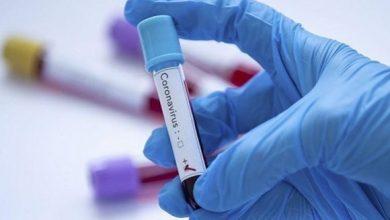 Photo of Coronavirus: 110 nouveaux cas, 75 guérisons et 3 décès